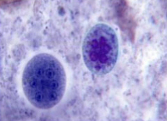Mature cysts of E.Coli